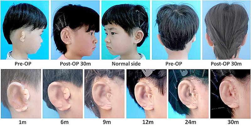 Quá trình tái tạo tai cho trẻ bị dị tật microtia. Ảnh: EBioMedicine