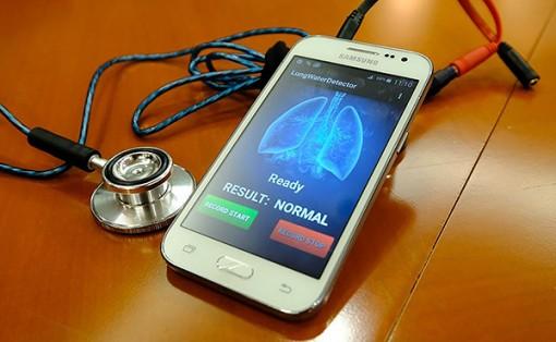 Hệ thống nghe phổi giúp nhận diện nguy cơ  suy tim xung huyết