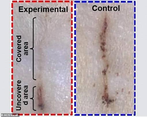 Băng y tế điện tử chữa lành vết thương nhanh gấp 4 lần