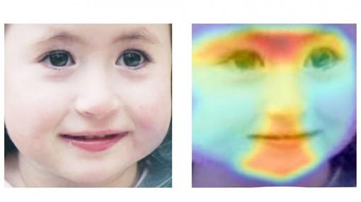 Chẩn đoán bệnh rối loạn di truyền bằng AI