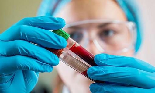 Xét nghiệm máu chẩn đoán sớm  ung thư phổi