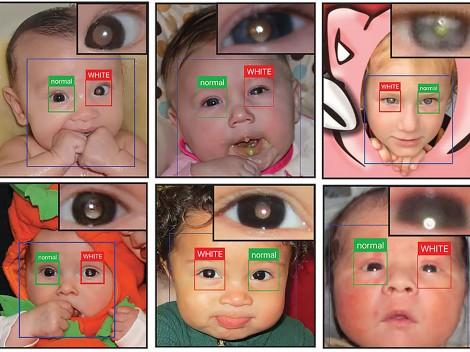 CRADLE phát hiện sớm bệnh mắt nghiêm trọng ở trẻ em