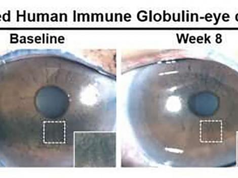 Những tiến bộ mới hỗ trợ phục hồi thị lực