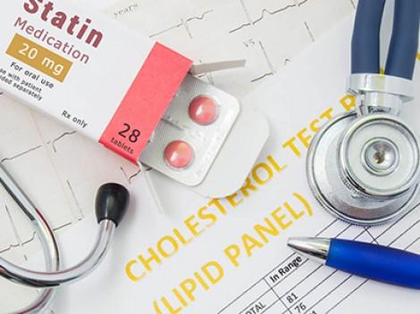 Thuốc thuộc nhóm statin không gây mất trí nhớ
