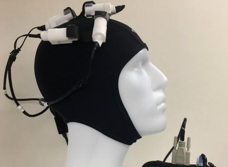 Thiết bị kích thích não cho bệnh nhân đột quỵ