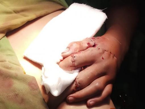 Điều trị thành công trường hợp bàn tay  dập nát do dùng pháo tự chế
