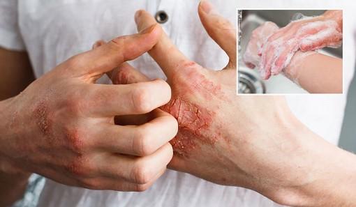 Bảo vệ da khi phải rửa tay nhiều lần trong ngày