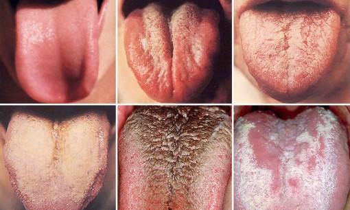 Nhìn lưỡi, chẩn bệnh cho bản thân