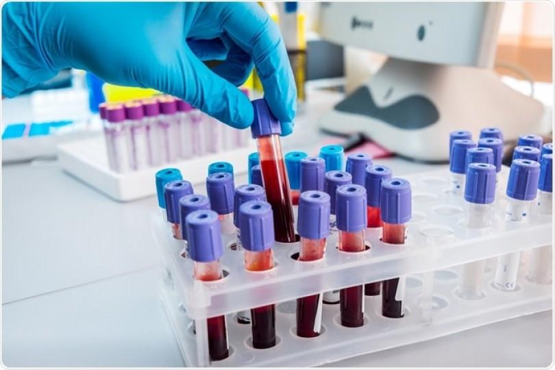 Xét nghiệm máu dựa trên AI giúp chẩn đoán 50 loại ung thư