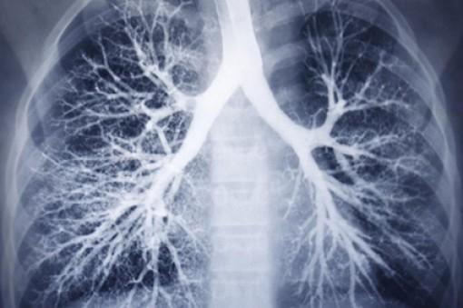 Chiết xuất trà xanh có tiềm năng điều trị xơ phổi