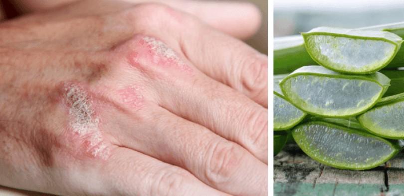 Những cách chữa bệnh vảy nến dễ thực hiện tại nhà