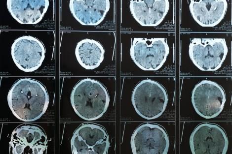 Bằng chứng béo phì có thể làm tăng nguy cơ mắc Alzheimer