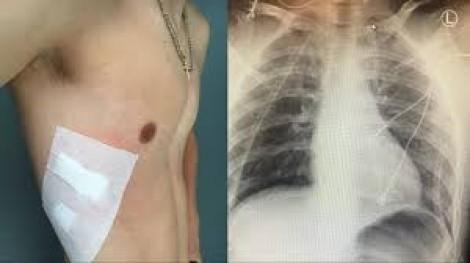 Thuốc lá điện tử làm tăng nguy cơ mắc COPD và COVID-19