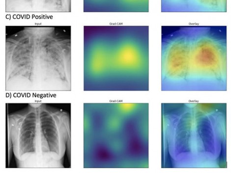 AI chẩn đoán COVID-19 trên phim X-quang đúng và nhanh gấp 10 lần chuyên gia