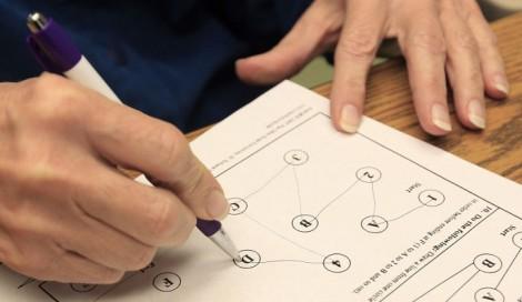 Kỹ thuật mới chẩn đoán sớm bệnh Alzheimer